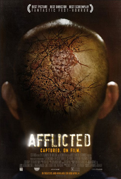 Afflicted 2013 Bluray REMUX 1080p AVC DTS-HD MA 5.1 - KRaLiMaRKo