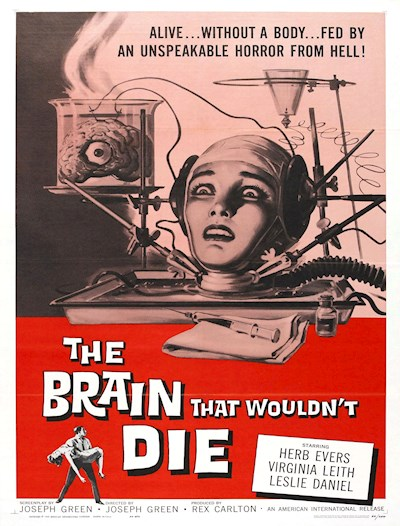 The Brain That Wouldnt Die 1962 720p BluRay FLAC x264-SADPANDA
